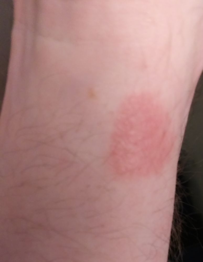 Silicone Band Rash