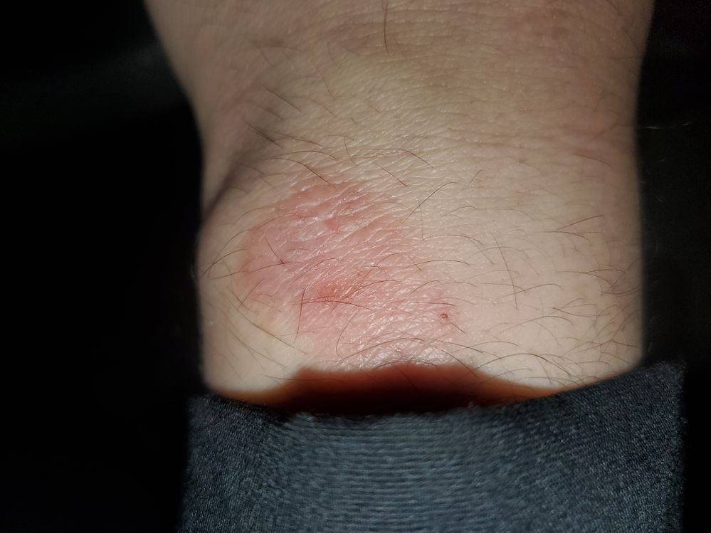 That burn was actually healing when i took the picture it was even worse than that days before the pic