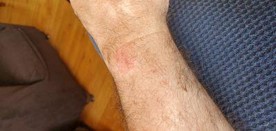 wrist burn 2.jpg